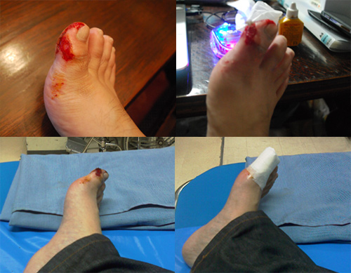 Injured Foot